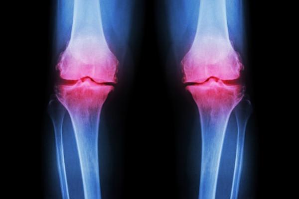 gonartroza tratamentului gradului genunchiului