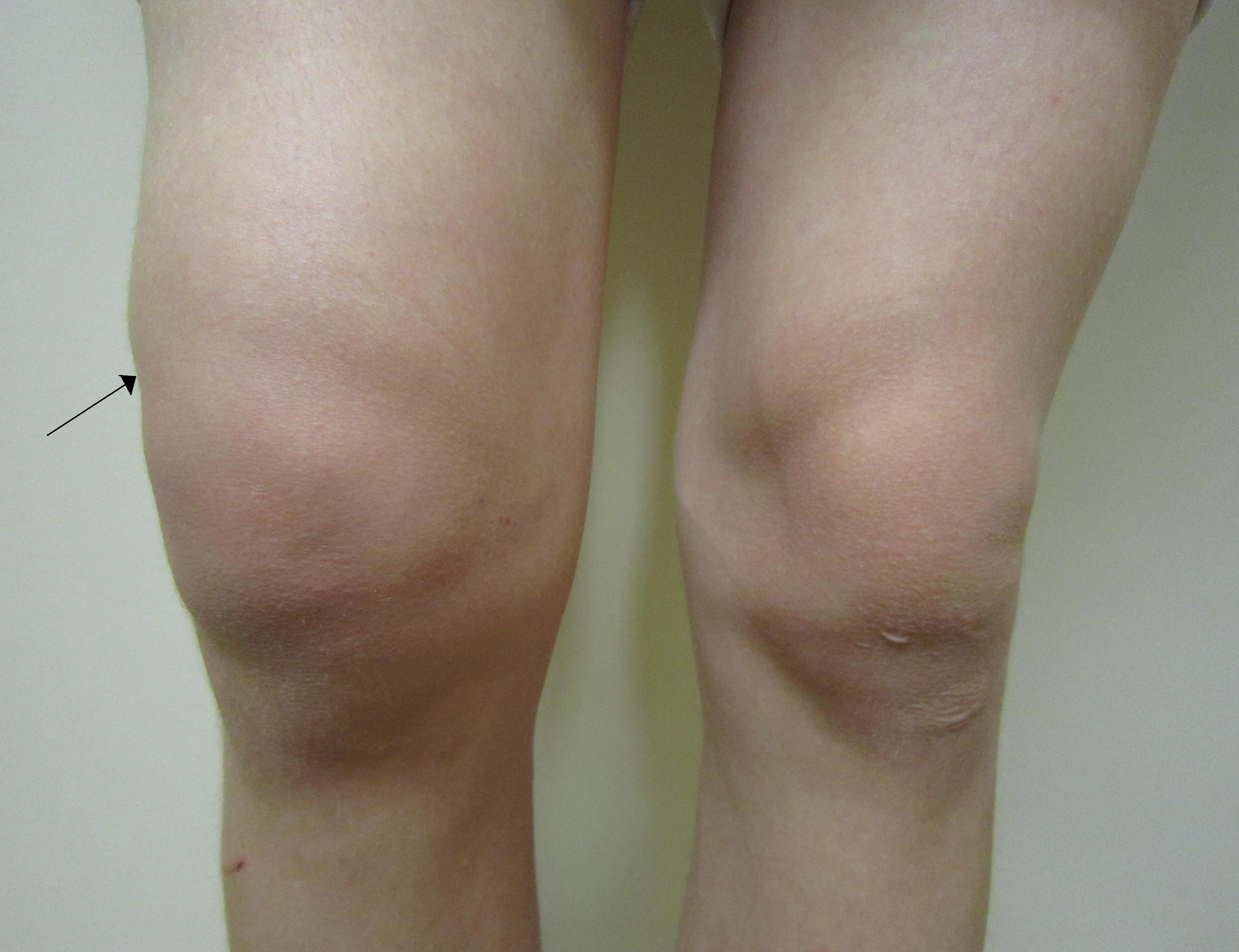 cum să verificați o articulație a genunchiului bicicleta artroza soldului