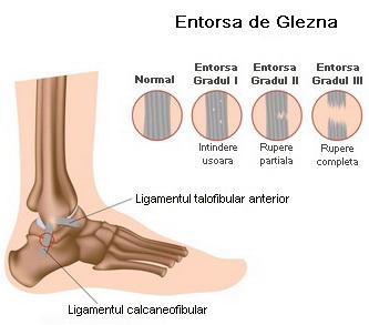 umflarea articulației gleznei pe un picior medicament de nucșoară pentru articulații