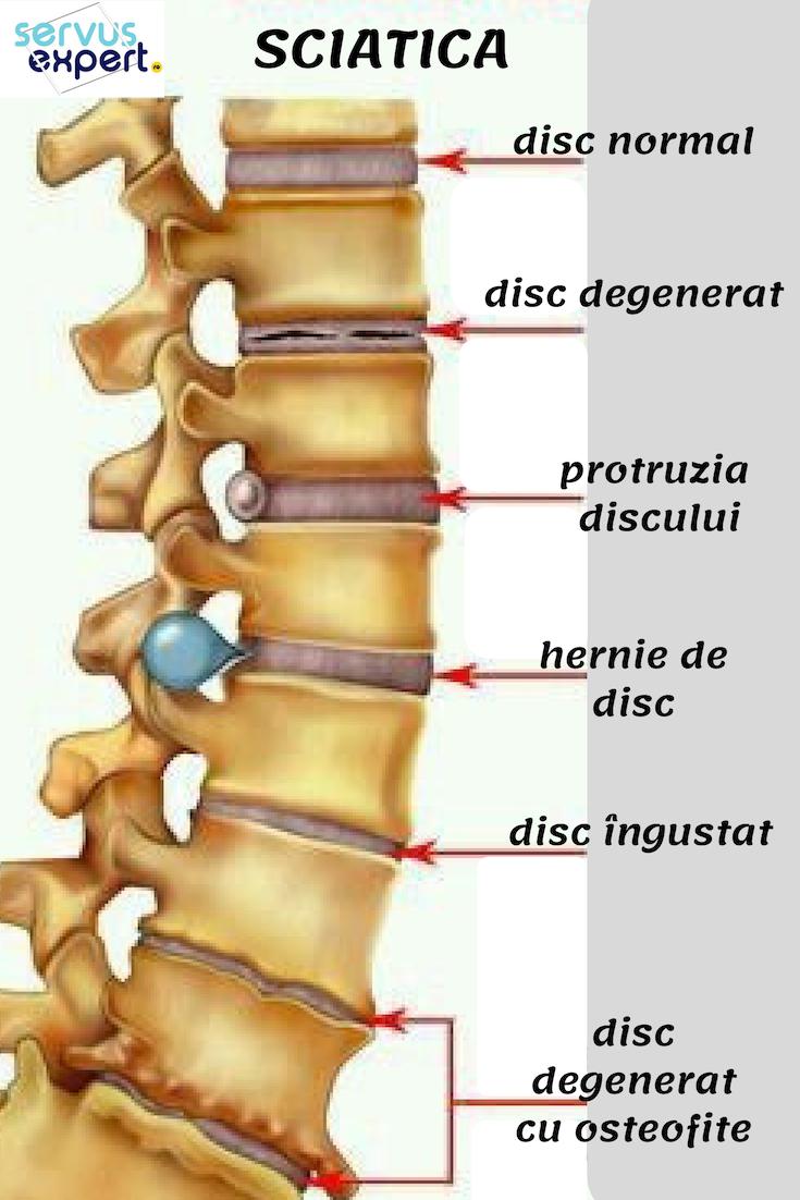 gelatină pentru durere în articulațiile coloanei vertebrale
