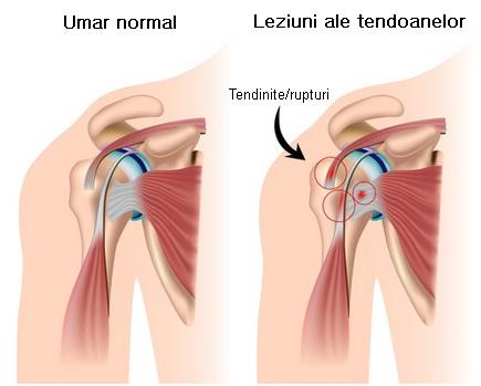 durerea radiază până la articulația umărului