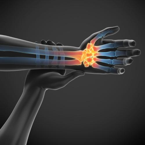 plante medicinale pentru ameliorarea durerilor articulare