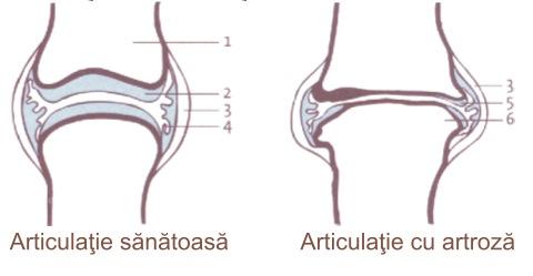 tratamentul poliartritei și artrozei