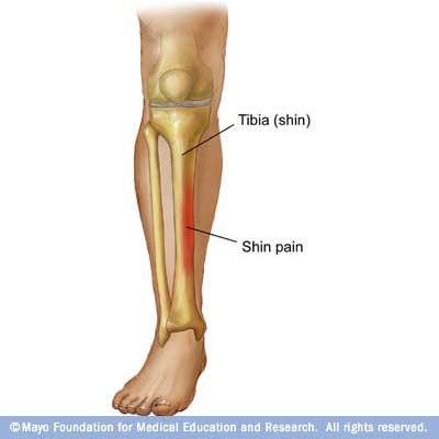 dureri articulare și musculare la piciorul drept
