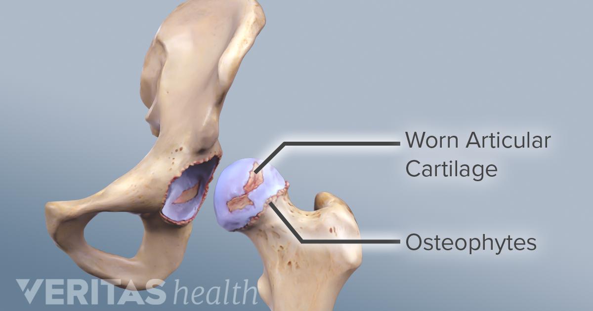 dureri articulare fără niciun motiv de ce rănesc articulațiile de pe pliuri