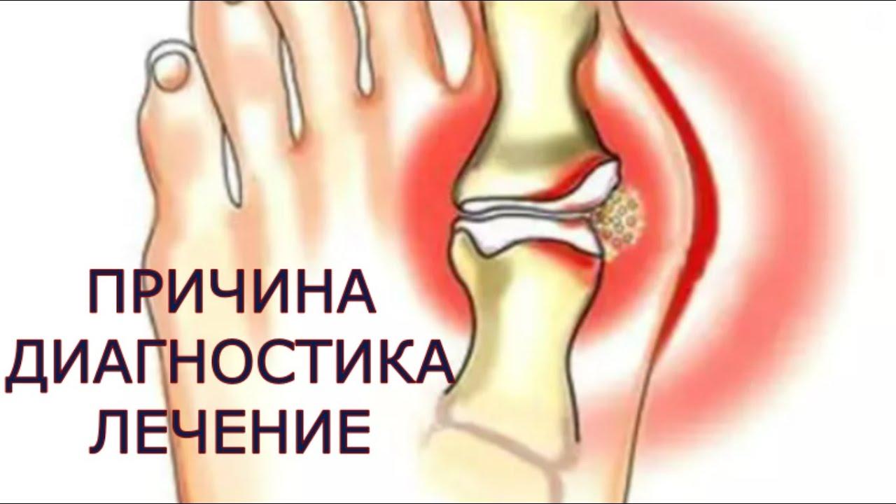 tratament și recuperare a entorselor la genunchi articulațiile degetelor de pe picioare și brațe doare