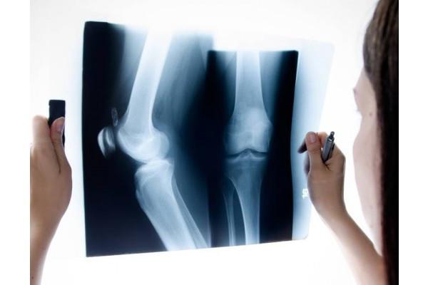 experiență în tratamentul artrozei