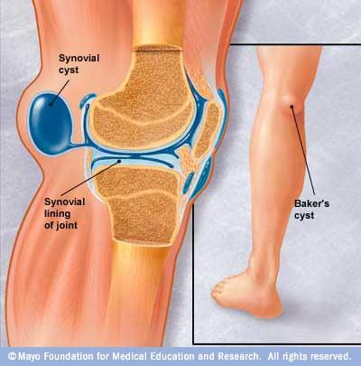Artroza tratamentului chistului articulației brutarului la genunchi - baremi.ro