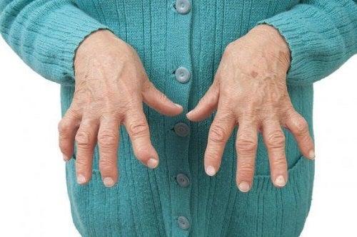 cum să tratezi artrita de diagnostic