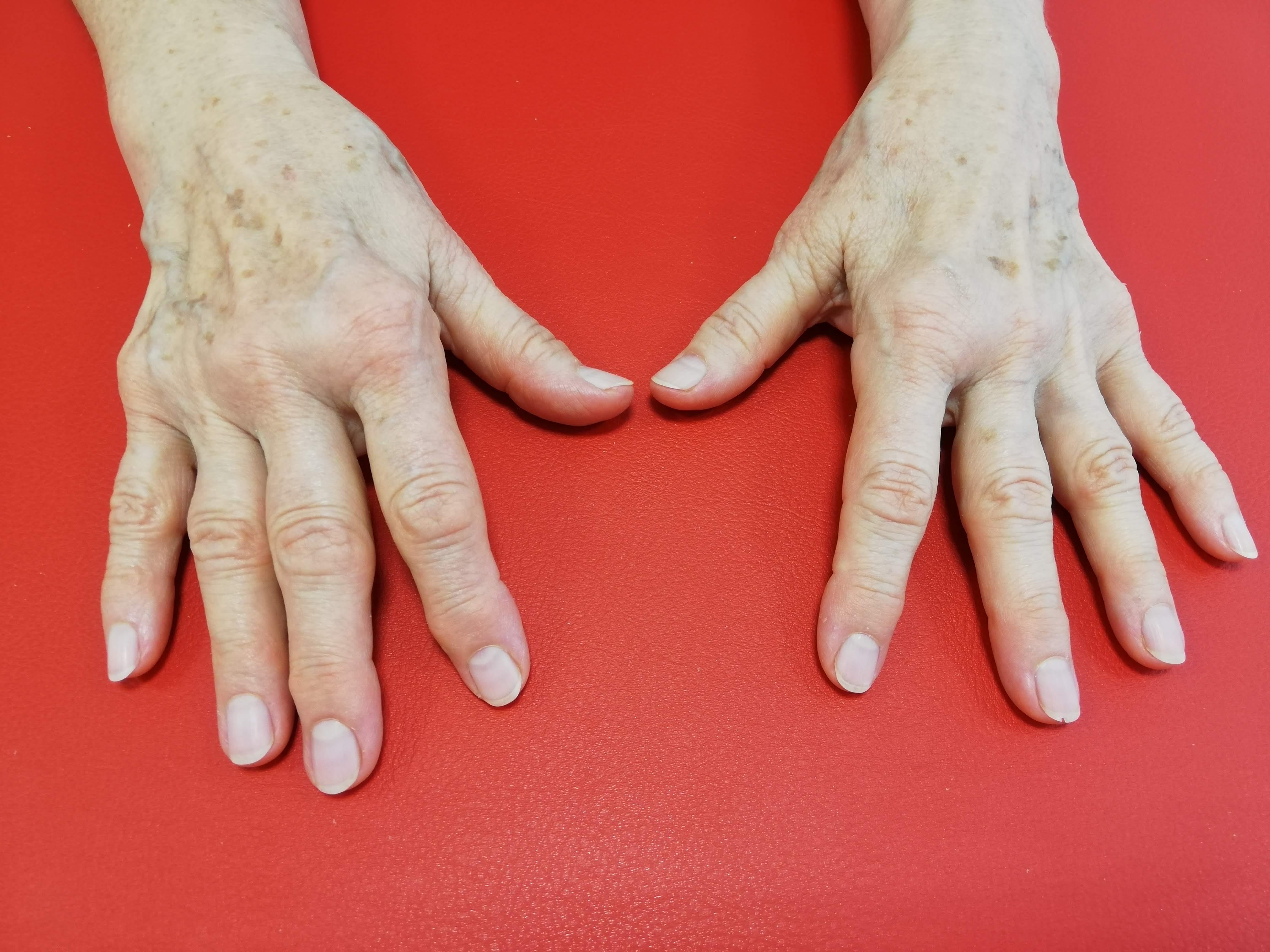ce este artroza articulației fațetei
