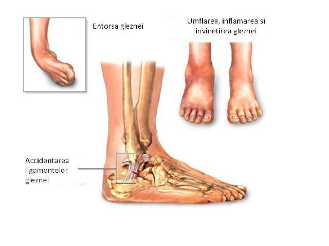 umflarea articulației gleznei pe un picior articulațiile genunchiului zboară