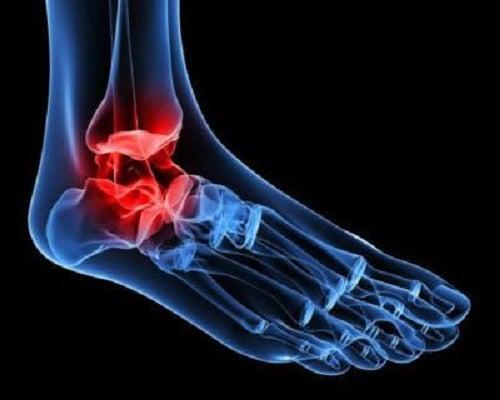 dureri articulare de la un pacient articulațiile suferă de stres