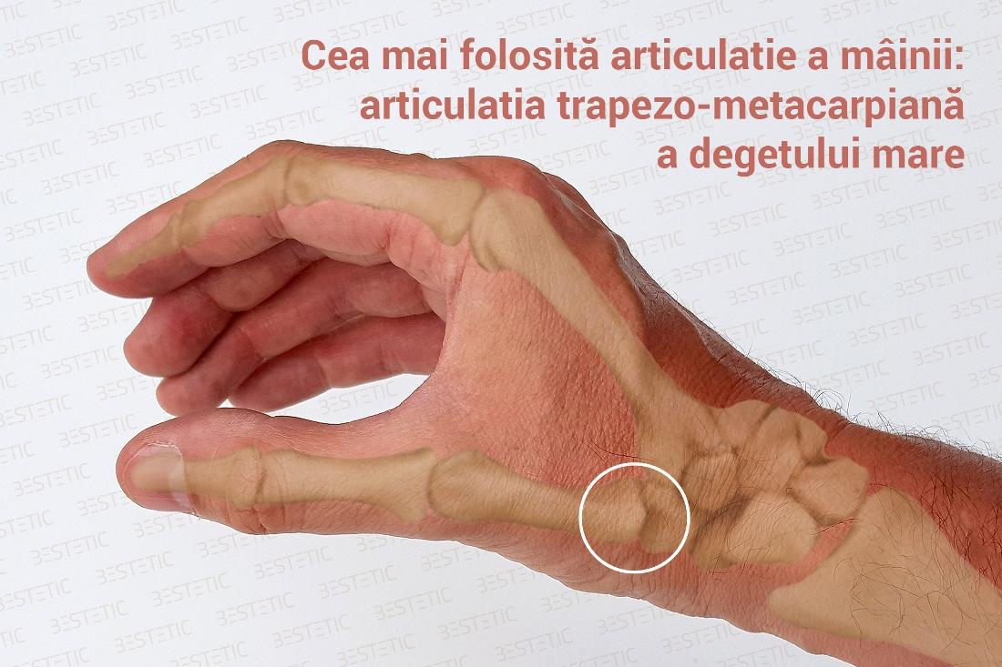 cum să elimini durerea articulațiilor șoldului condroitină și glucozamină în farmacii