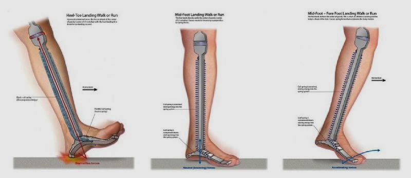 Glezna Durere Ligament Alerga - 6 accidentari frecvente, provocate de alergat, ADAUGA COMENTARIU