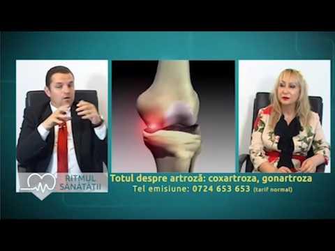 ameliorați inflamația articulară în artroză