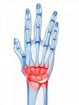 artrita clamidială a genunchiului dureri de genunchi când se ridică