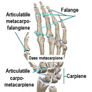 tratamentul artrozei sinovitei tot despre artroza articulației șoldului