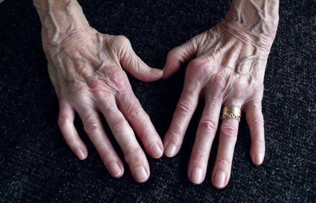 crize de durere articulară medicament pentru durerea articulațiilor cotului