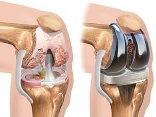 artroza de genunchi bilateral de grad 2 unguent pentru durere în articulațiile mâinilor Preț