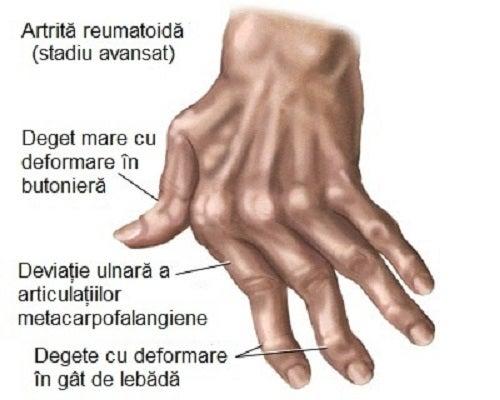 artrita reumatoida tratarea artrozei deformante