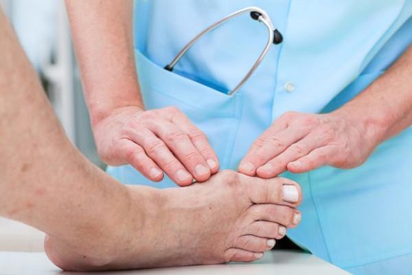 cum să tratăm exacerbarea artritei gutoase