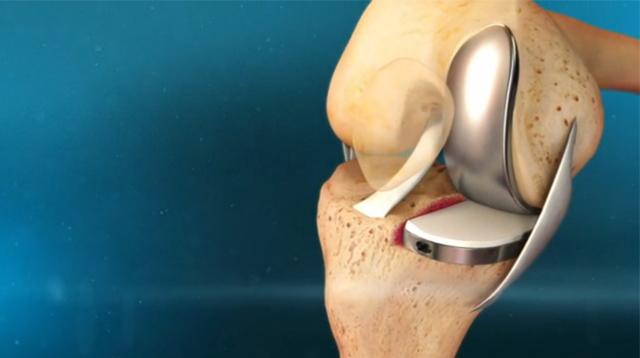 boli ale articulațiilor încheieturii