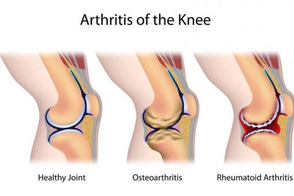 care este diferența dintre artroza și artrita mâinilor