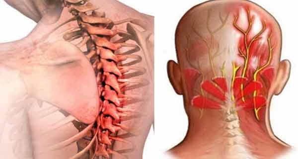 vitMATINA O boala atipica. Cum recunoastem fibromialgia? | Medlife