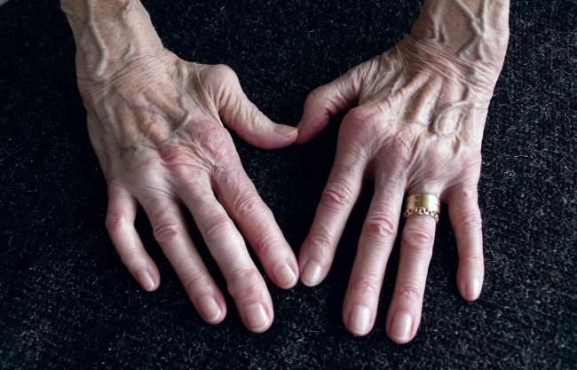 cum să alinați durerea în articulațiile gleznei