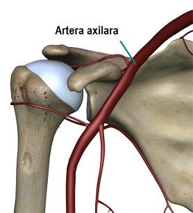 deformarea artrozei umărului și a articulațiilor acromioclaviculare