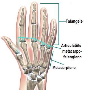 deformând artroza articulațiilor interfalangiene distale Ulei de sunătoare pentru tratament comun