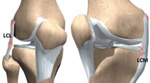 deteriorarea ligamentului colateral extern al articulației genunchiului