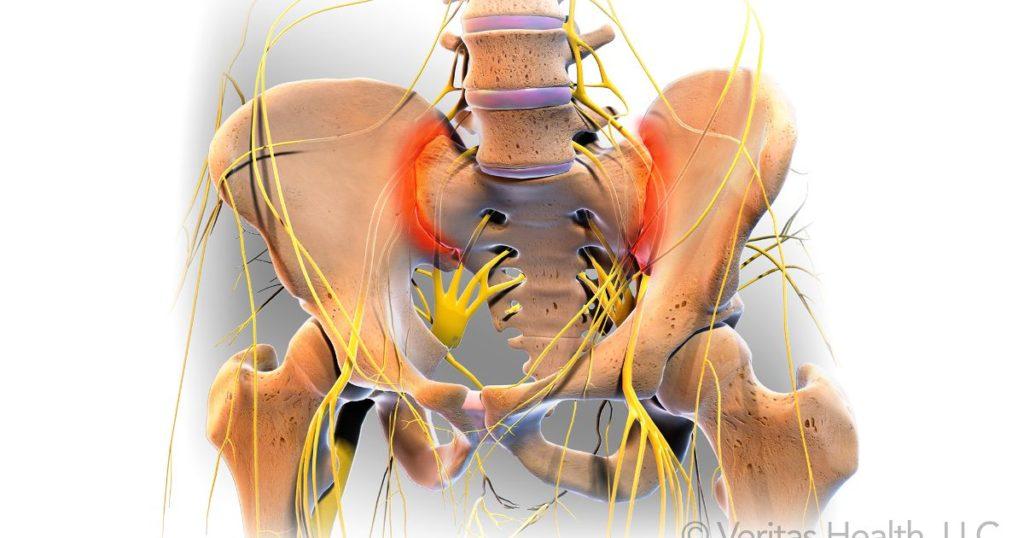 Disfuncţia articulaţiei sacroiliace (Sacroileita) : baremi.ro