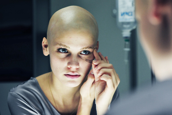dureri articulare și musculare după chimioterapie