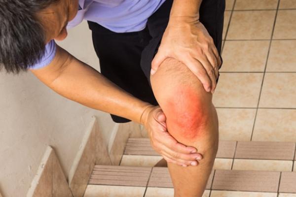 dureri musculare peste genunchi diagnostic de artroză deformantă a genunchiului