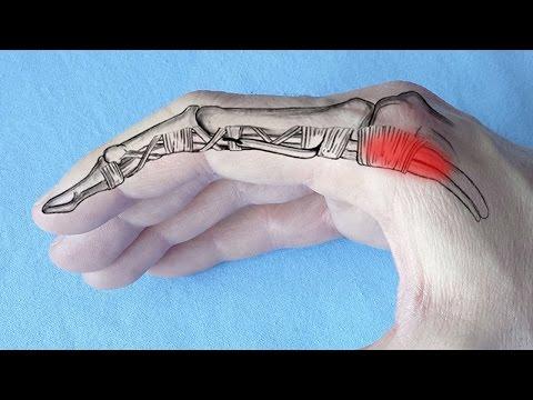 inflamația articulațiilor de pe degete cum se tratează