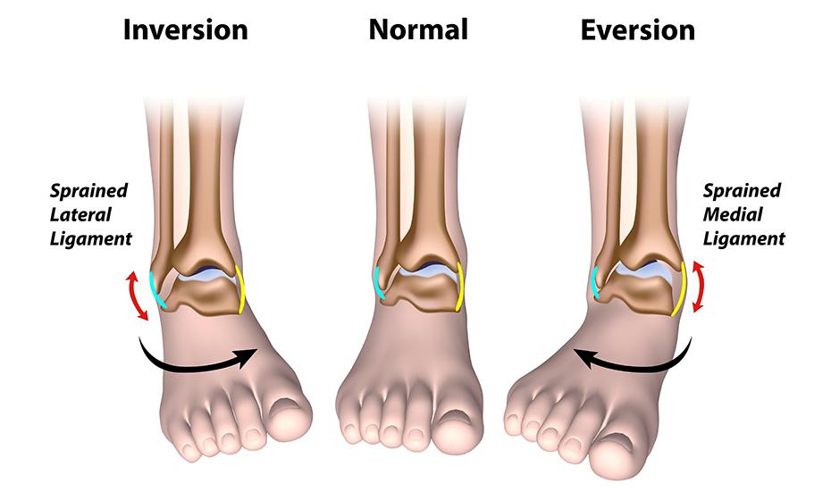 Leziuni la nivelul piciorului și gleznei, Leziunile articulației gleznei