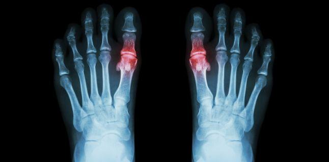 simptomele și tratamentul bolilor osoase și articulare