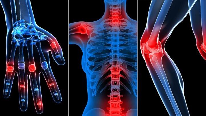 unde să tratezi artroza coloanei vertebrale